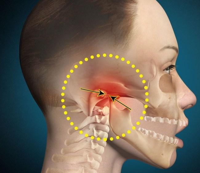 боль при открывании рта